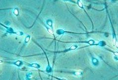 Teknik Pengeringan Sperma
